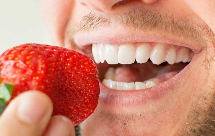 Crowns vs Veneers - Teeth picture